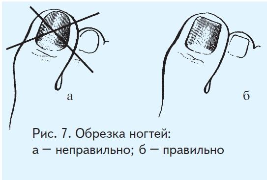 Ногти гноятся лечение