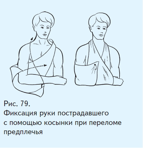 Косынка при переломе руки сшить своими руками
