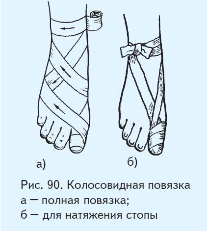 Схема повязок на палец